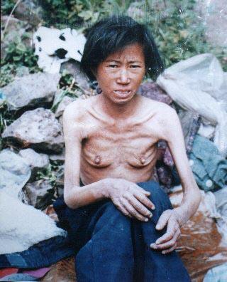 starving-North-Korean